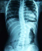 X-ray of a spine with scoliosis